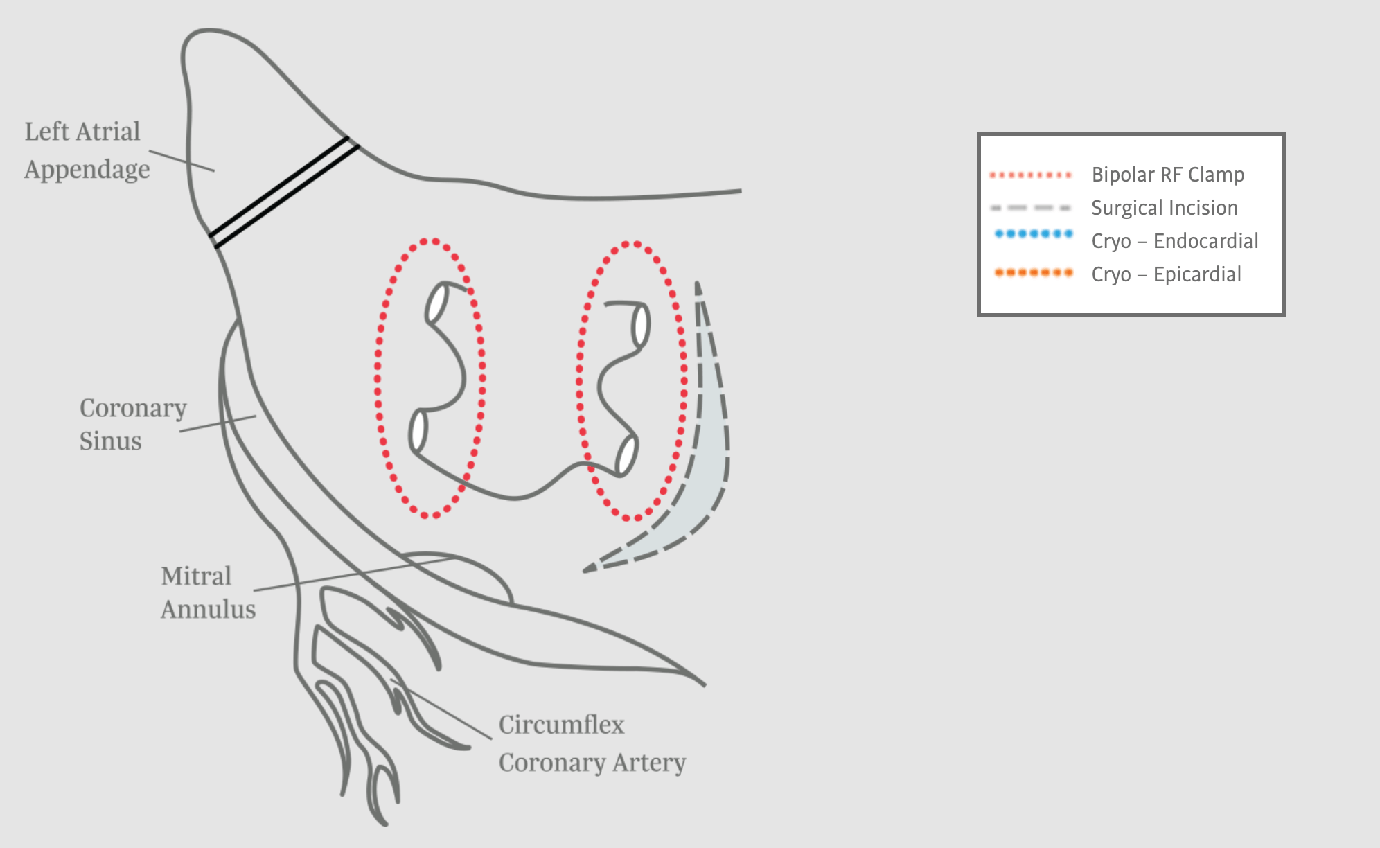 Pulmonary Vein Isolation for Surgical Ablation